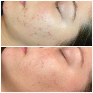 Acné behandeling door Skinfluence
