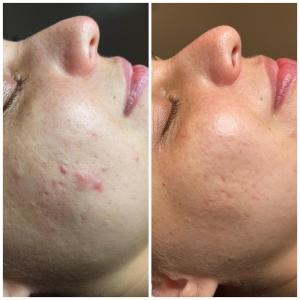 Acné behandeling Skinfluence Oisterwijk