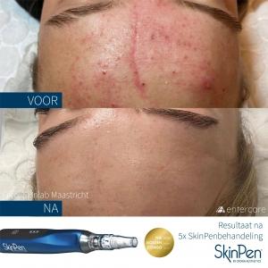 Medisch microneedling met SkinPen bij Skinfluence